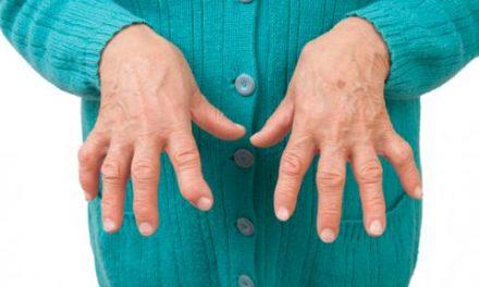 Ojo mujeres, artritis reumatoide dentro de las enfermedades más comunes de este género